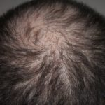 Metody leczenia łysienia