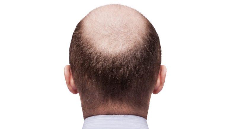 Jak zatrzymać łysienie