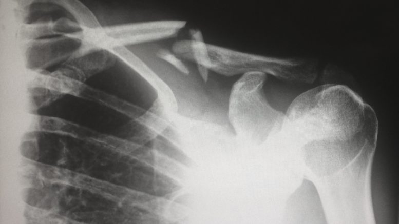 choroba kości