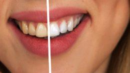 wybielanie zębów cena