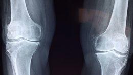 Nieleczona osteoporoza RTG obraz