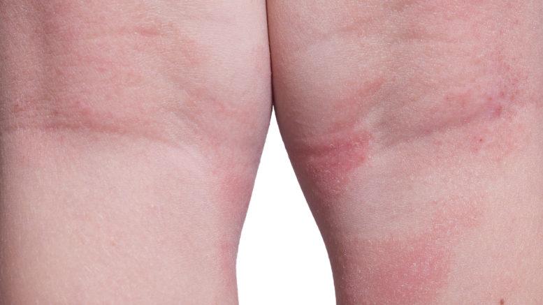 atopowe zapalenie skóry zdjęcie