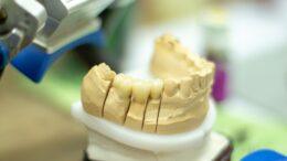 implant zebowy